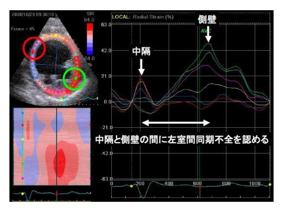 同症例のspeckle tracking像