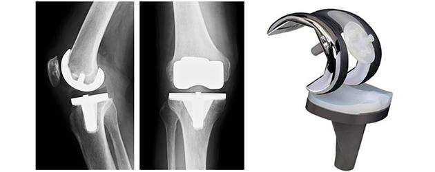 膝 術 置換 禁忌 関節 人工