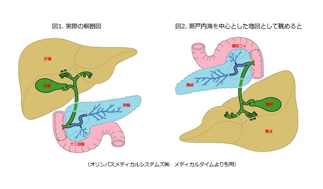胆・膵疾患イメージ2